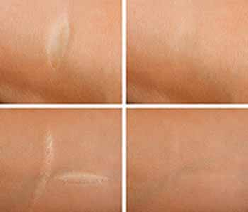 reduce the appearance of various types of scars