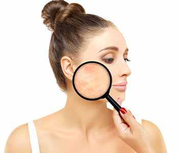 Dr. Cheryl Burgess (Center for Dermatology and Dermatologic Surgery) is an experienced dermatologist providing state of the art scar revision services in Washington D.C.
